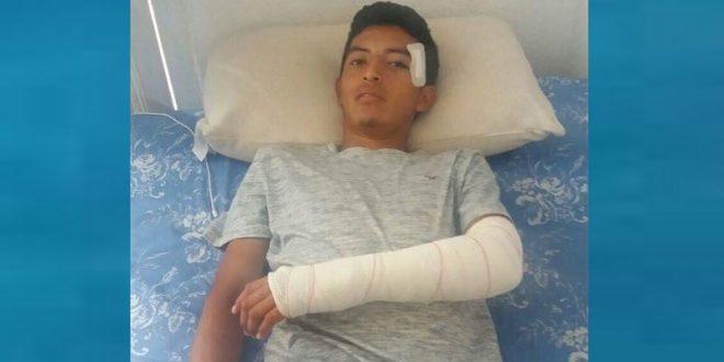 Sufre el huamantleco PABLO MARTÍNEZ 'FINITO', en España, grave bautizo de sangre (*Fotos*)