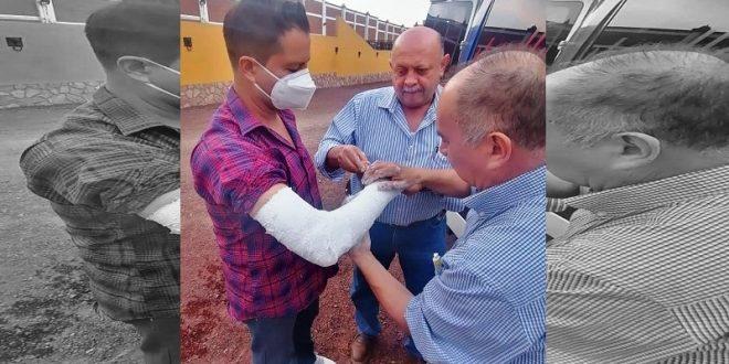 ¡Luis Gallardo, fracturado! (*Fotos*)